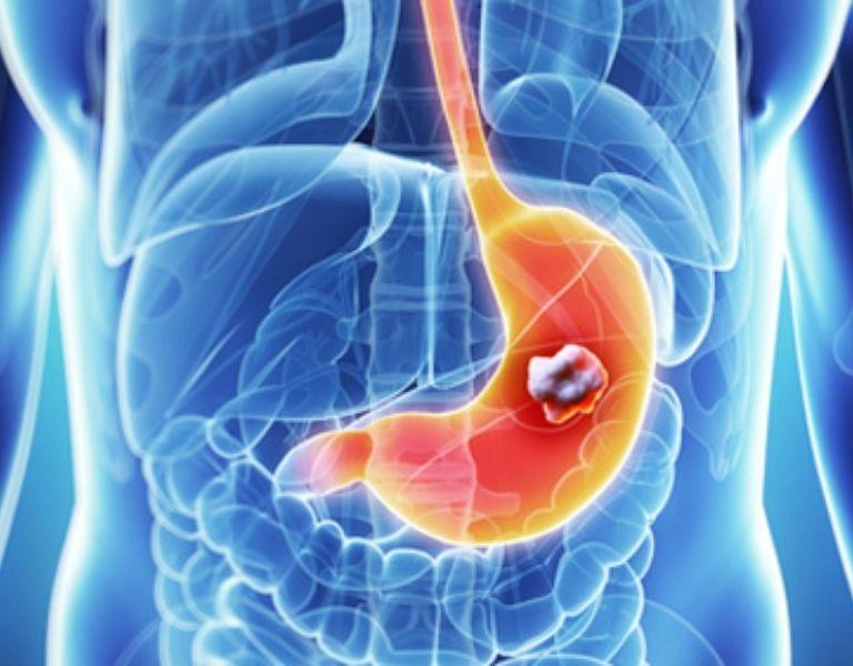 Ung thư dạ dày có tỷ lệ tử vong cao
