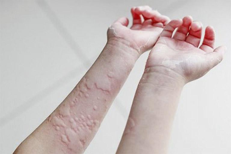 Hình thành các vết lằn chằng chịt như mạng nhện là dấu hiệu của bệnh nổi mề đay