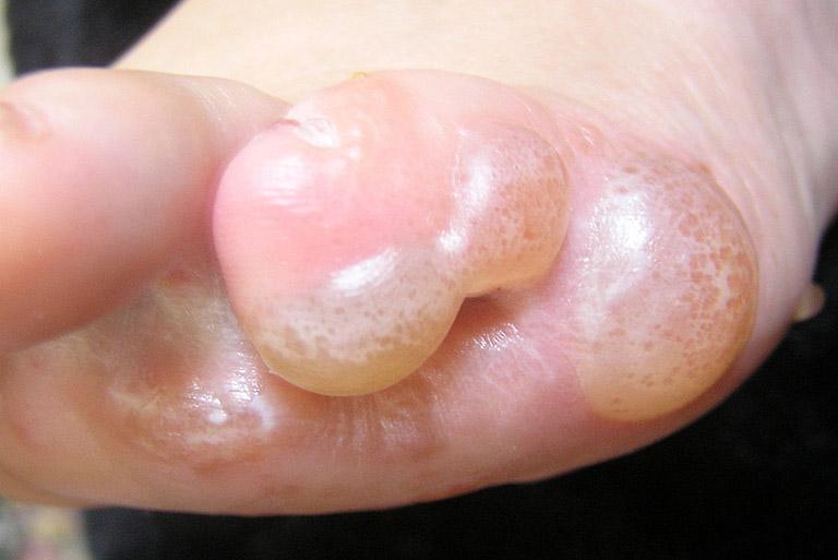 Hình ảnh bệnh nấm to đỉa