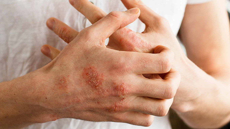 Không nên dùng cây thuốc nam trị bệnh khi trên da có sự xuất hiện của vết thương hở