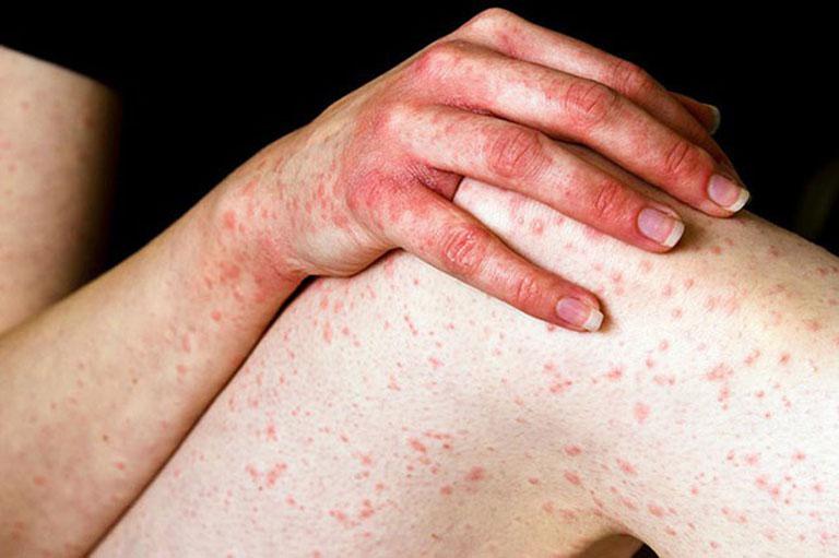 Dược tính trong lược vàng sẽ giúp cải thiện các triệu chứng của bệnh viêm da cơ địa