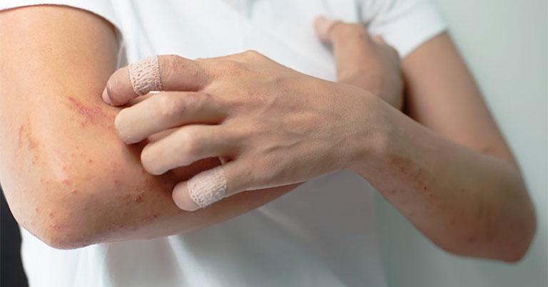 Không cào gãi lên vùng da bị tổn thương để tránh nguy cơ nhiễm trùng, bội nhiễm
