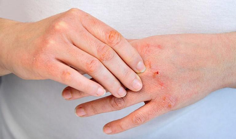 Dùng lá ổi để cải thiện các triệu chứng của bệnh viêm da cơ địa