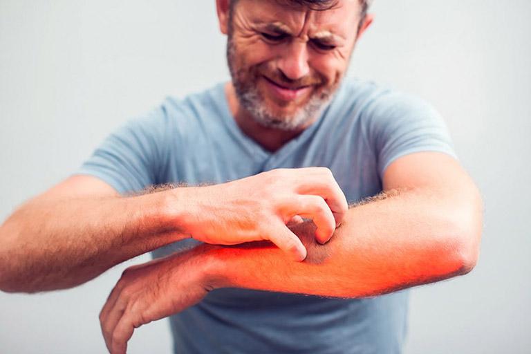 điều trị viêm da cơ địa tại nhà