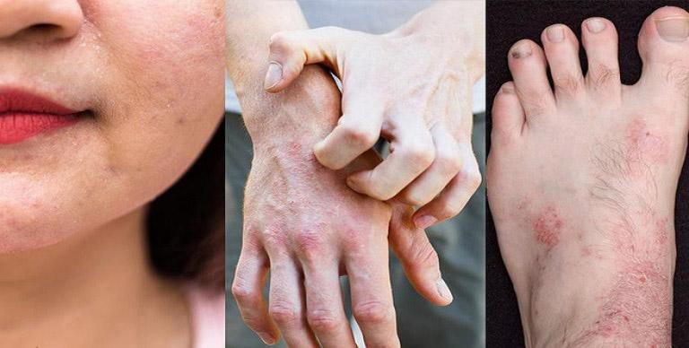 Kiên trì dùng dầu mù u trong thời gian dài thì triệu chứng của bệnh sẽ dần thuyên giảm