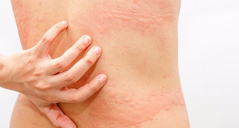 Các bài thuốc trị bệnh từ lá đơn đỏ chỉ có khả năng giảm nhẹ triệu chứng của bệnh trên da