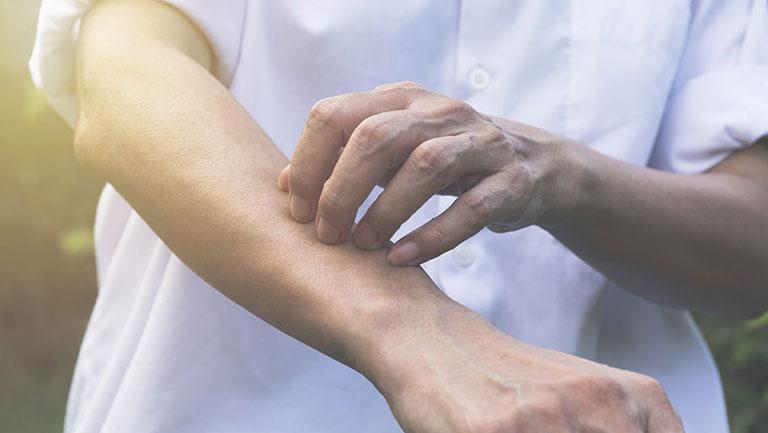 Nổi mề đay có thể khởi phát do các kích thích cơ học của người bệnh lên làn da