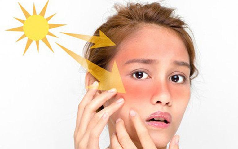 Tiếp xúc lâu với ánh nắng cường độ cao là nguyên nhân khởi phát bệnh
