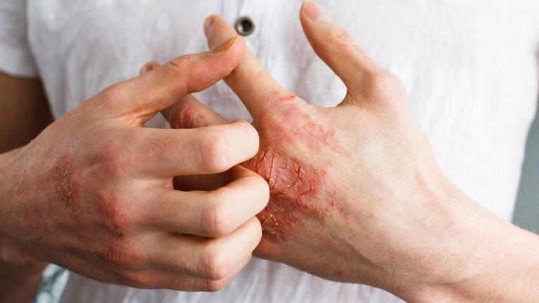 Thói quen cào gãi vùng da bị tổn thương là nguyên nhân gây bội nhiễm