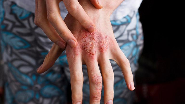 Thực hiện chăm sóc da tại nhà đúng cách giúp hỗ trợ điều trị bệnh