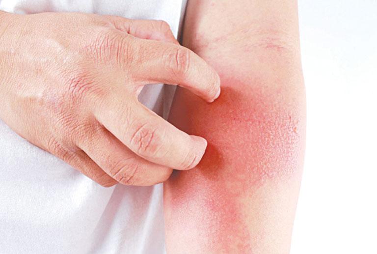 Tổn thương da do viêm da cơ địa gây ra ở giai đoạn cấp tính