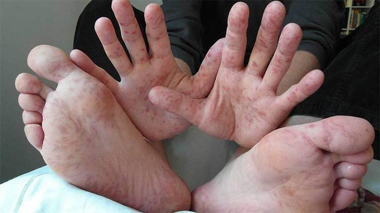 Lòng bàn tay và lòng bàn chân là vị trí dễ khởi phát tổn thương do viêm da cơ địa