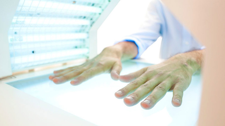viêm da cơ địa đầu ngón tay