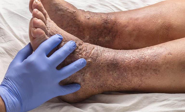 Viêm da cơ địa ở chân không dược điều trị gây thâm nhiễm lan rộng