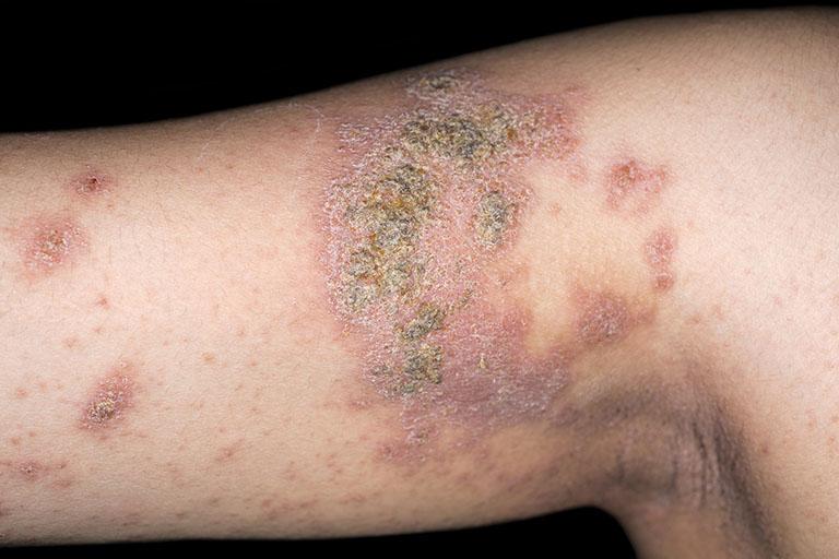 triệu chứng viêm da cơ địa