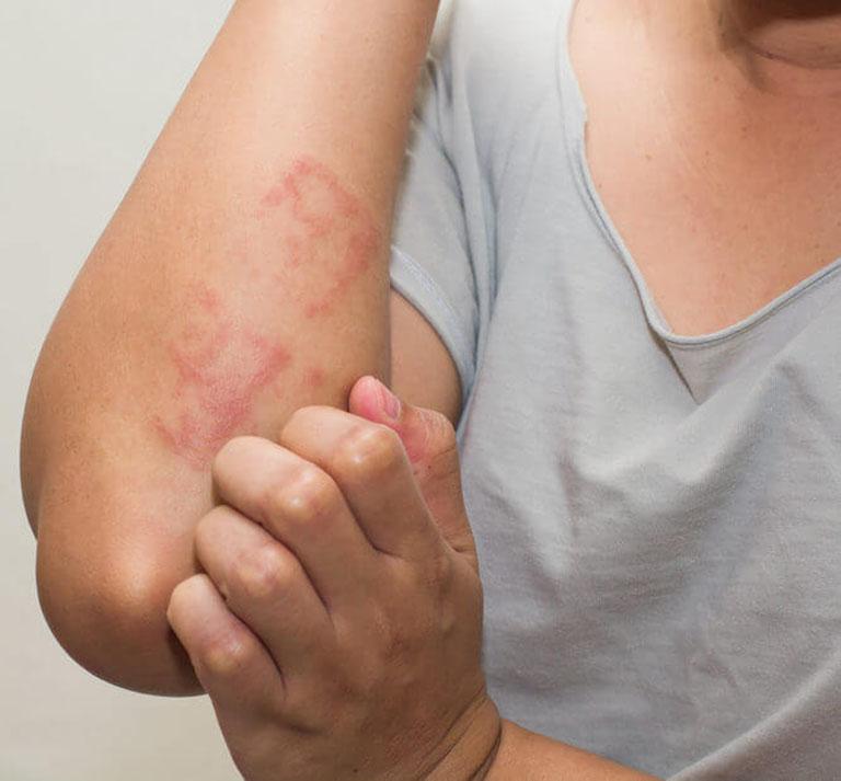 Bị nổi mề đay ngứa không rõ nguyên nhân là dấu hiệu bệnh gì?