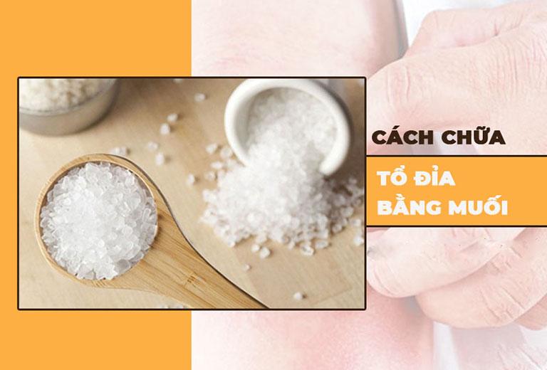 cách chữa tổ đỉa bằng muối