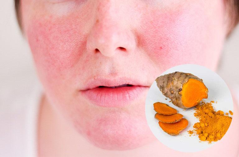 chữa dị ứng da mặt bằng nghệ