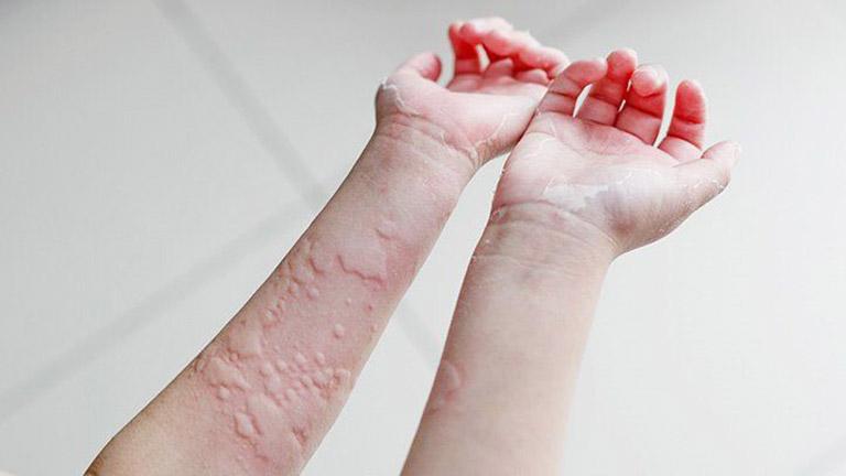 thuốc đông y đặc trị bệnh mề đay mẩn ngứa