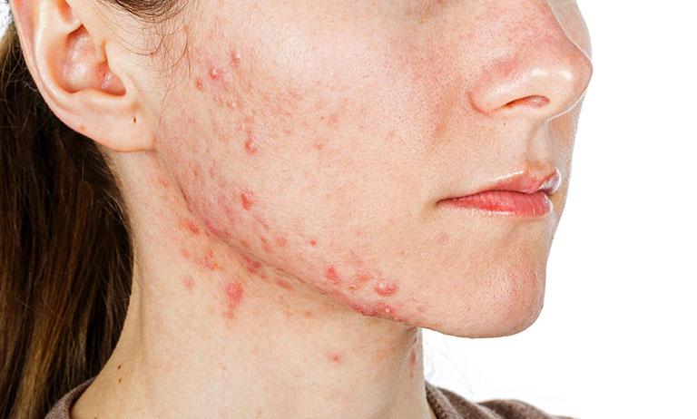 Bị dị ứng da mặt nên ăn gì và kiêng gì?
