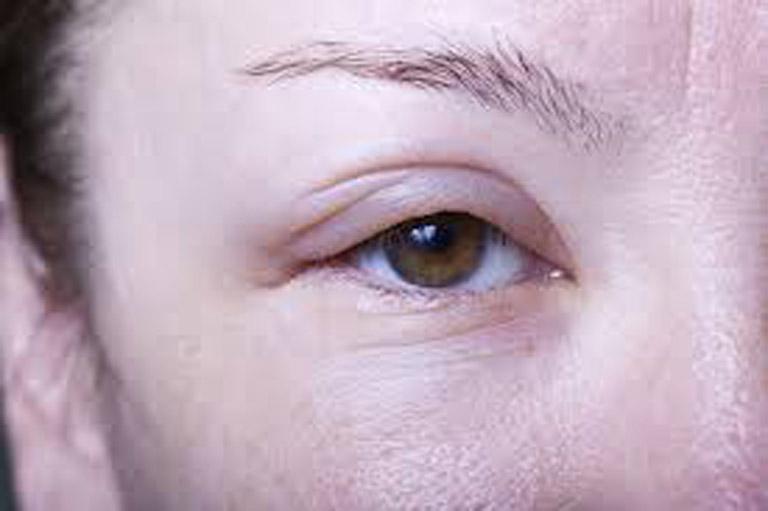 Ban đầu phù mạch chỉ diễn ra ở vùng da nhỏ sau đó mới lan rộng ra xung quanh