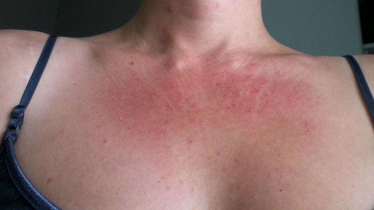 Nổi mẩn đỏ ngứa sau khi quan hệ