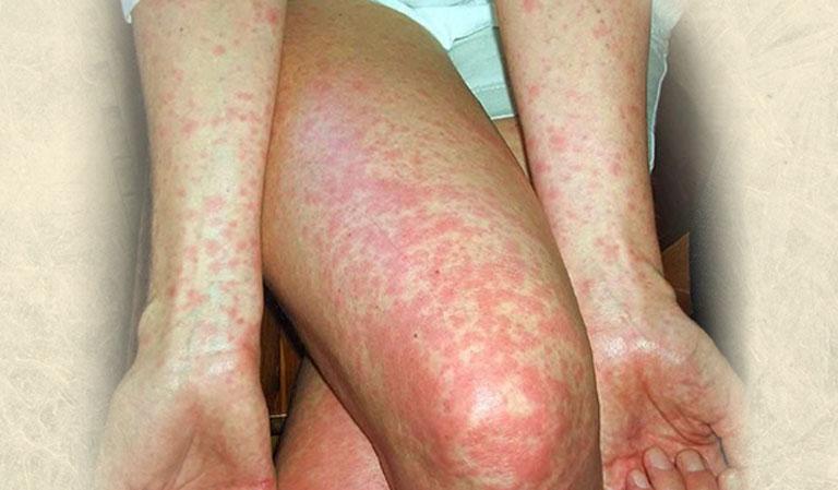 Tổn thương da do mề đay phát triển lan rộng khắp toàn thân