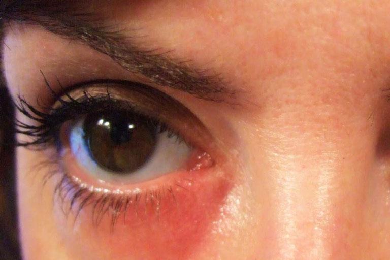 Nổi mề đay xung quanh mắt