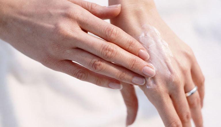 10 Loại thuốc, kem bôi trị tổ đỉa hiệu quả nhất 2020