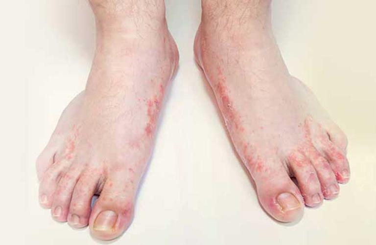dấu hiệu bệnh tổ đỉa ở tay chân