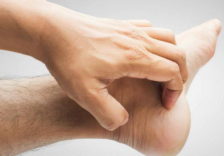 bệnh tổ đỉa ở tay chân