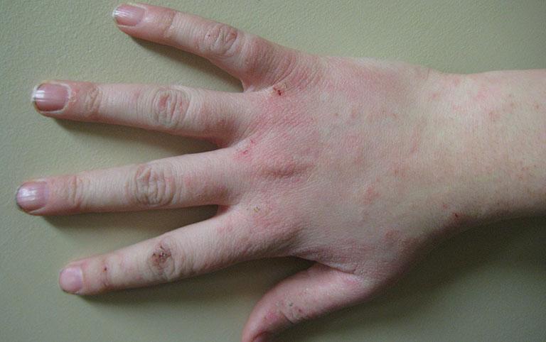 Bệnh tổ đỉa ở trẻ em do đâu gây ra?