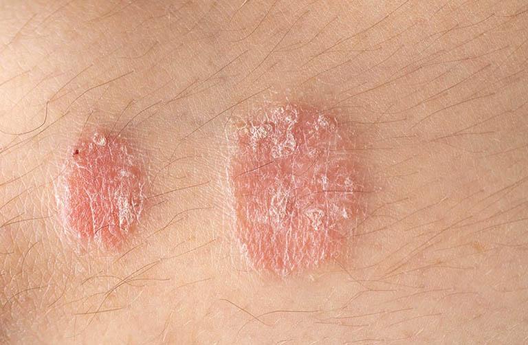 Bệnh vảy nến có lây không? Có di truyền không?