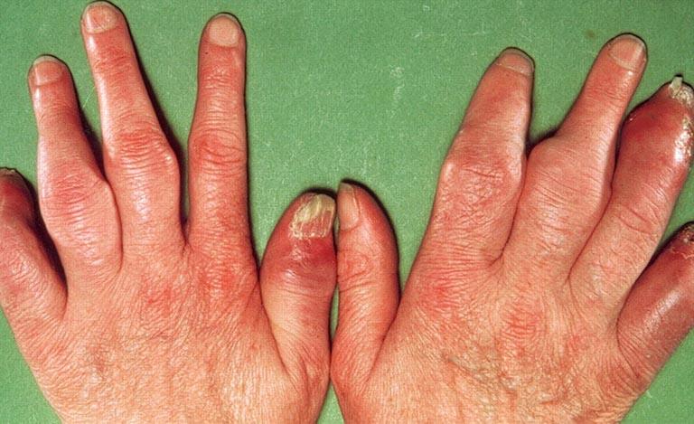 Bệnh vảy nến móng tay, chân có nguy hiểm không?