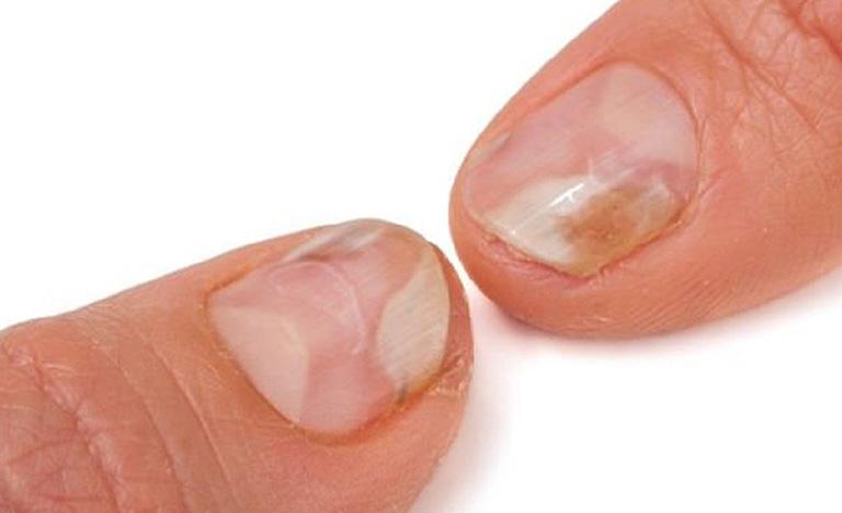 Nhận biết bệnh vảy nến móng tay, chân