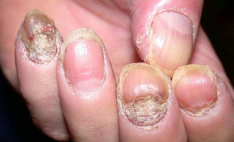 Bệnh vảy nến móng tay, chân: Nguyên nhân và cách điều trị