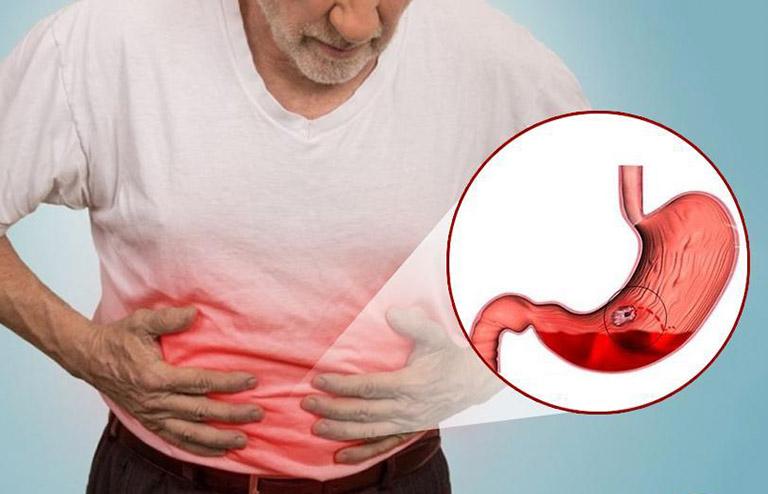 biến chứng bệnh viêm loét dạ dày