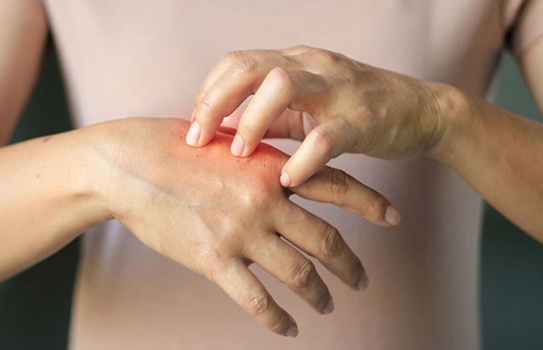 lưu ý khi chữa vảy nến bằng thuốc đông y