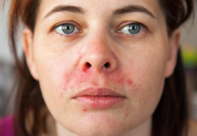 da mặt khô ngứa nổi sẩn đỏ là bệnh gì