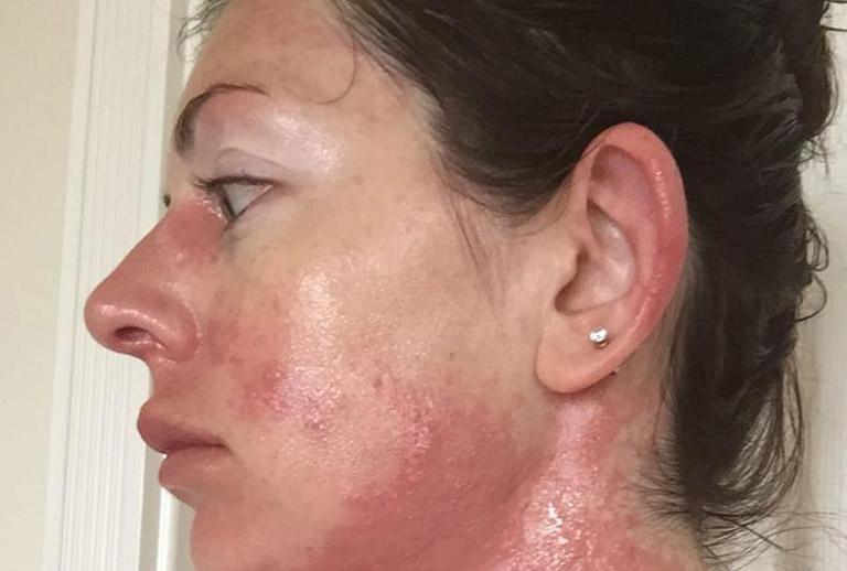 dị ứng da mặt kéo dài bao lâu