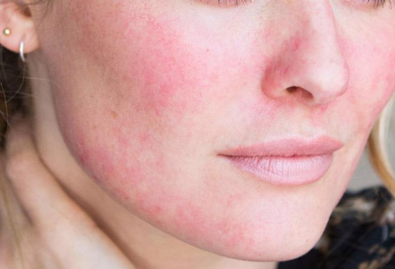 dị ứng da mặt có tự khỏi không