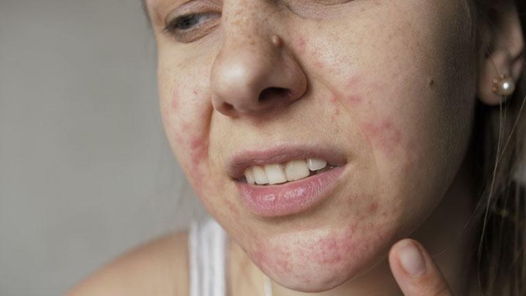 Dị ứng da mặt nên uống hay bôi thuốc gì nhanh khỏi?