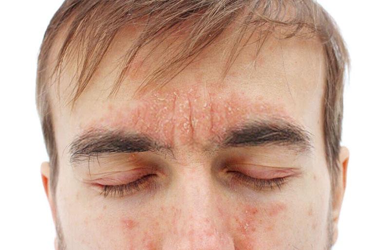 vảy nến da mặt