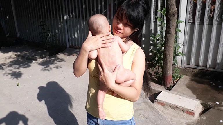 Phương pháp điều trị bệnh vảy nến ở trẻ em