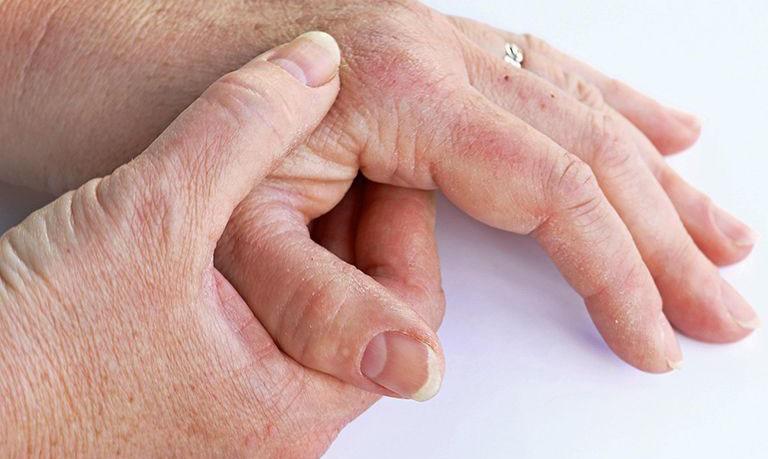 Chăm sóc và phòng ngừa nguy cơ tái phát hoặc biến chứng