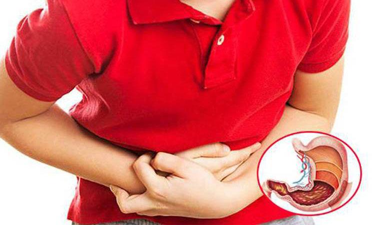 Viêm dạ dày cấp là gì?