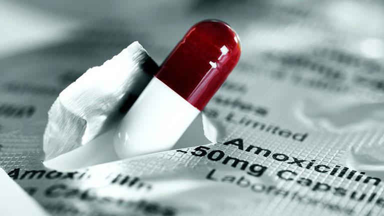 điều trị bệnh viêm đại tràng