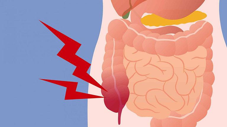 viêm đại tràng là bệnh gì