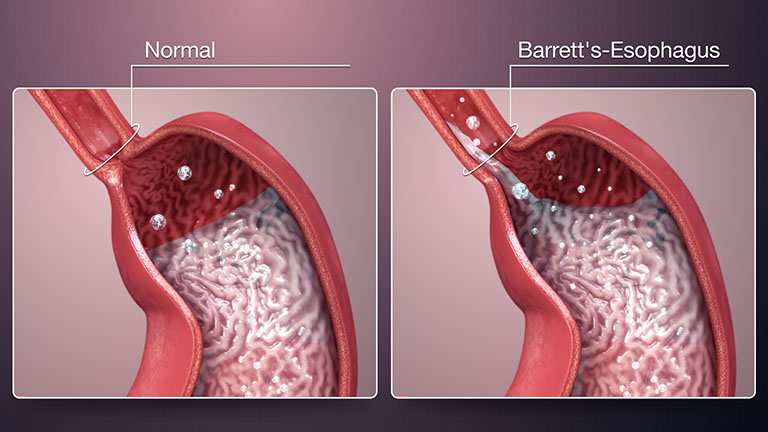 Trào ngược dạ dày độ D thường gây ra biến chứng Barrett thực quản