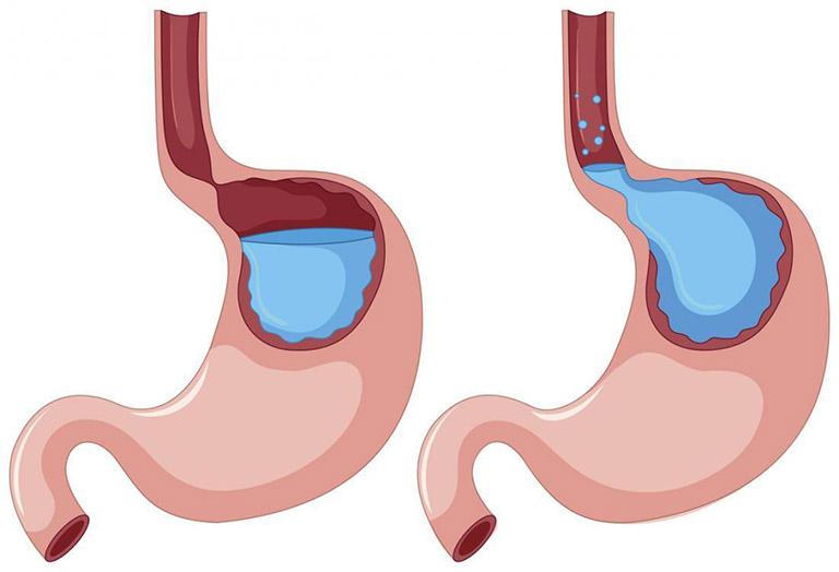 các cấp độ trào ngược dạ dày